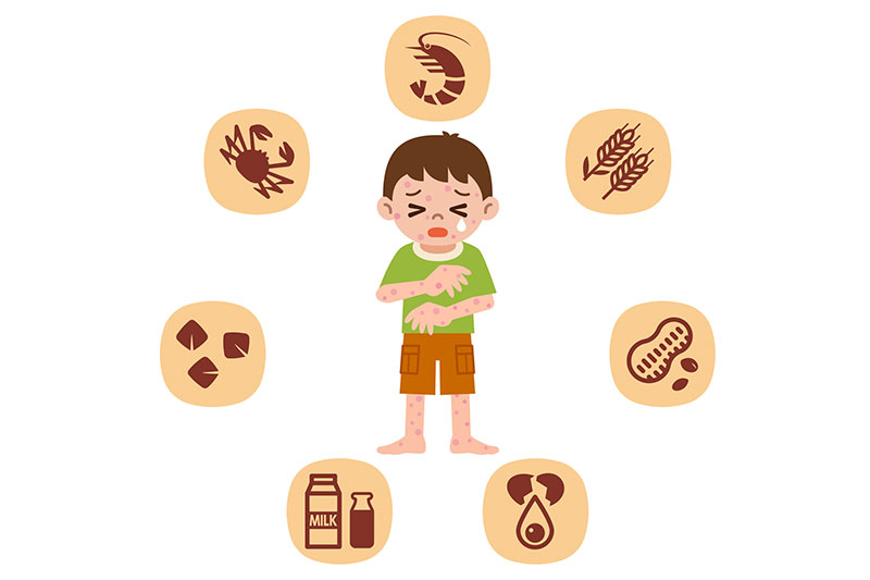 給食とアレルギー児童の増加
